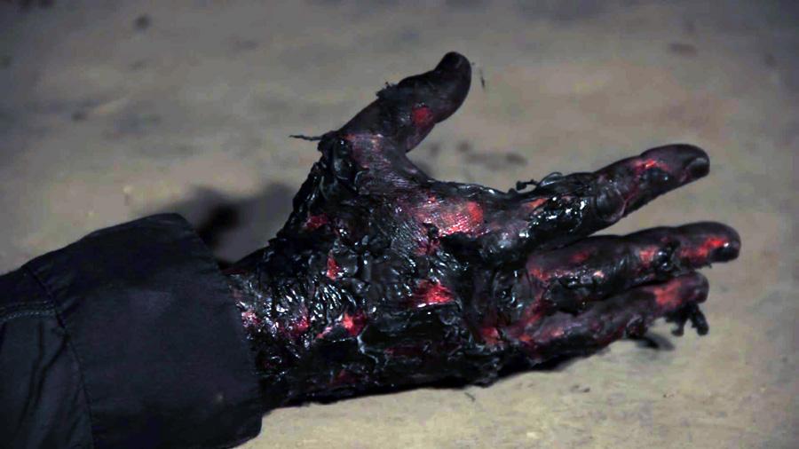 burned-hand